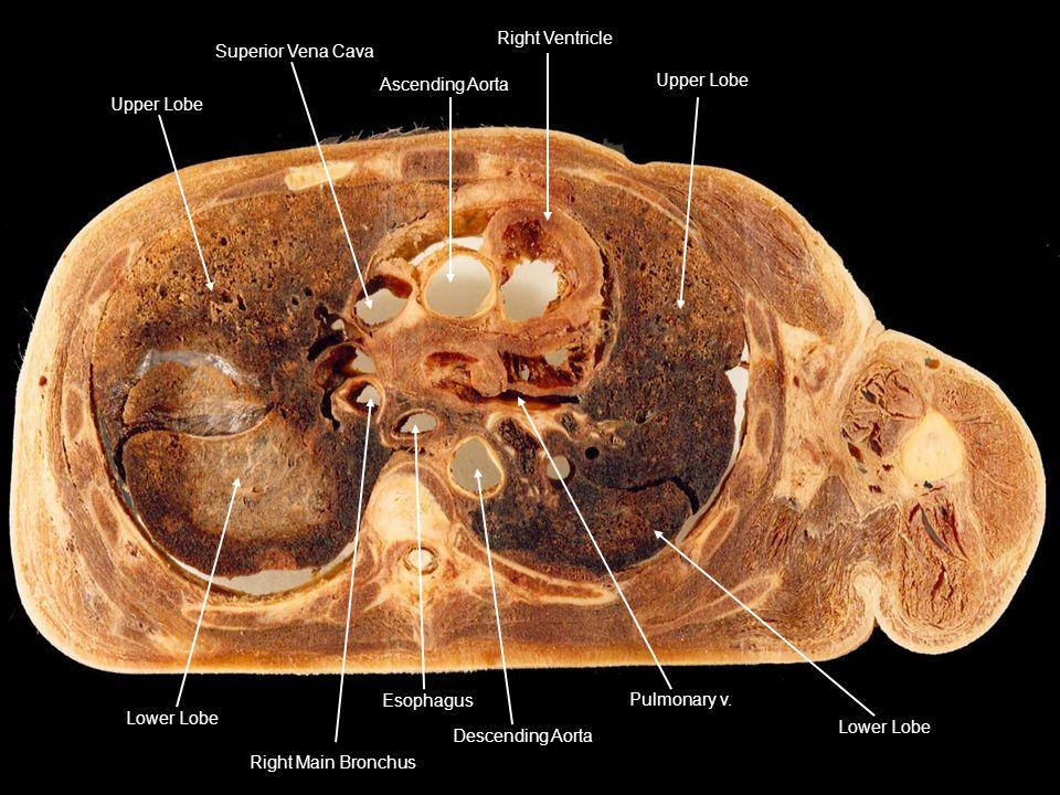 Ascending Aorta Superior Vena Cava Upper Lobe Right Ventricle Upper Lobe Lower Lobe Pulmonary v. Descending Aorta Esophagus Right Main Bronchus Lower