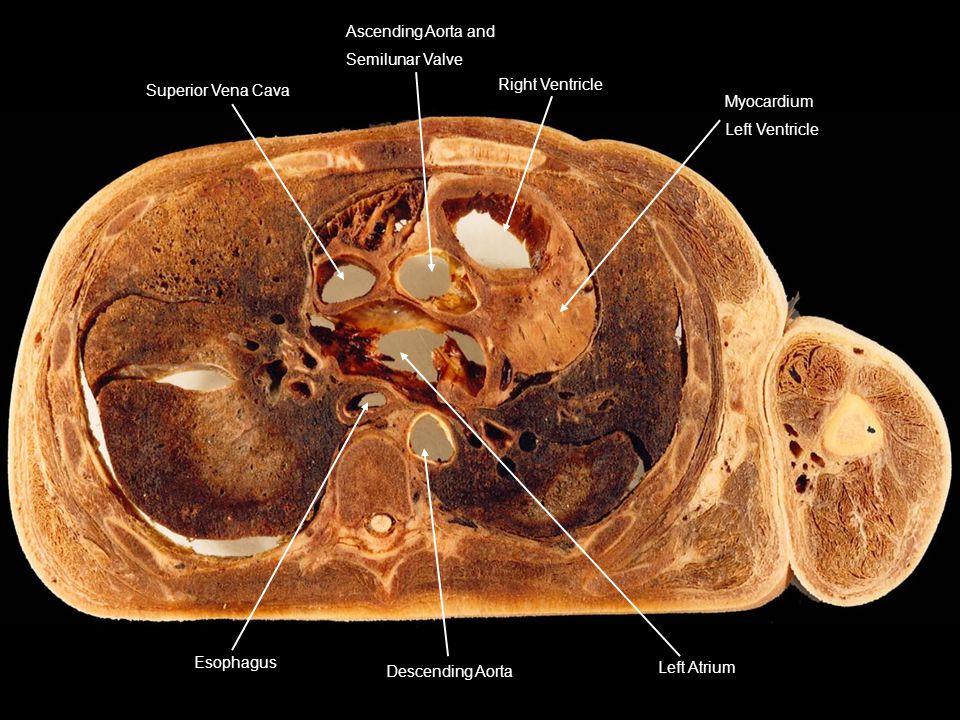 Superior Vena Cava Ascending Aorta and Semilunar Valve Right Ventricle Myocardium Left Ventricle Left Atrium Descending Aorta Esophagus