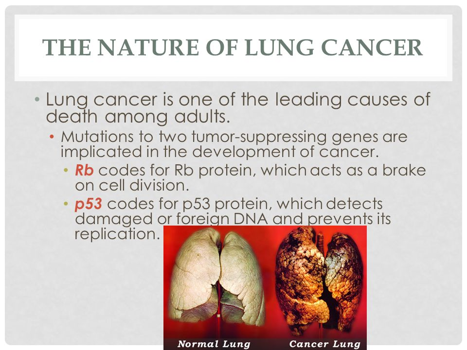 THE NATURE OF LUNG CANCER Lung cancer is one of the leading causes of death among adults. Mutations to two tumor-suppressing genes are implicated in t