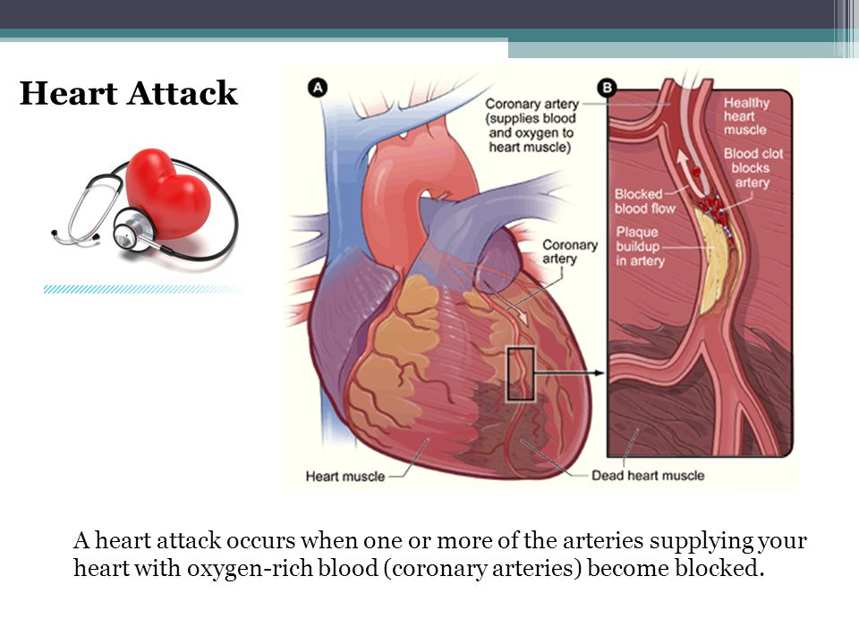 Sudden Cardiac Arrest Sudden cardiac arrest (SCA) is a condition in which the heart suddenly and unexpectedly stops beating.
