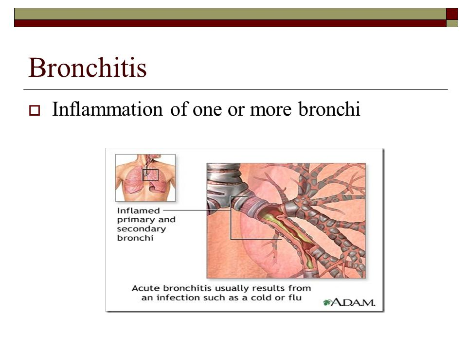 Bronchitis  Inflammation of one or more bronchi