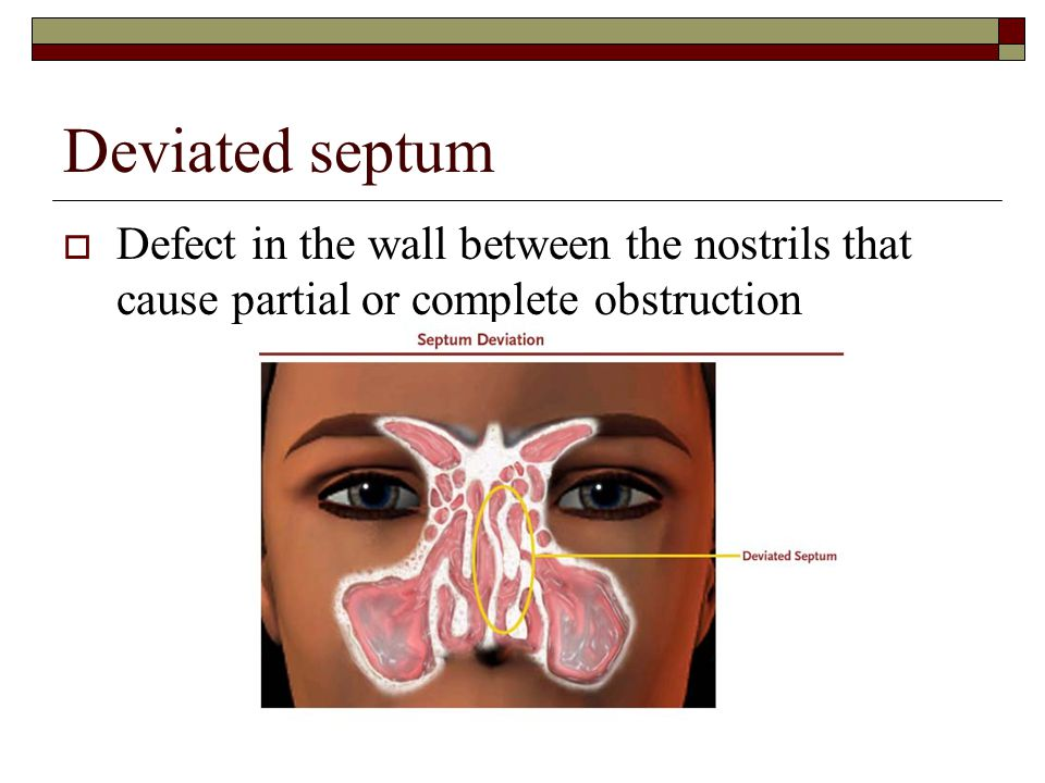 Deviated septum  Defect in the wall between the nostrils that cause partial or complete obstruction
