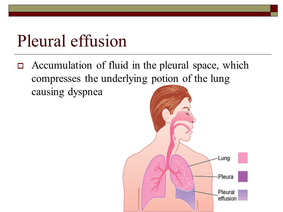 Pleural effusion  Accumulation of fluid in the pleural space, which compresses the underlying potion of the lung causing dyspnea