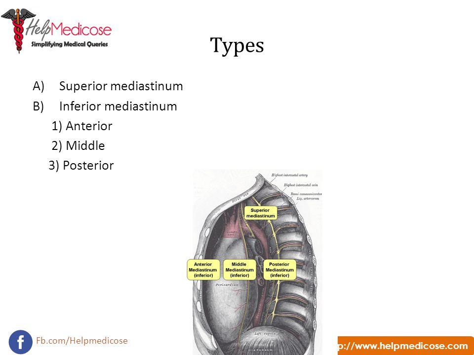 http://www.helpmedicose.com Fb.com/Helpmedicose Types A)Superior mediastinum B)Inferior mediastinum 1) Anterior 2) Middle 3) Posterior