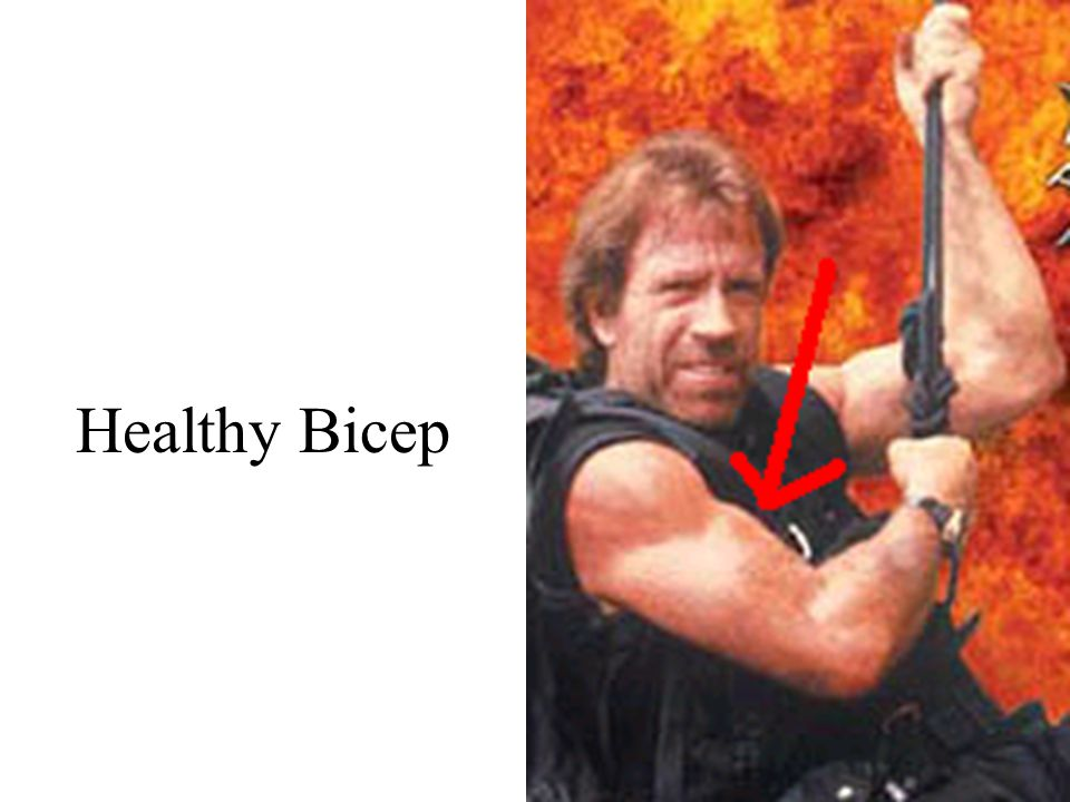 Healthy Bicep