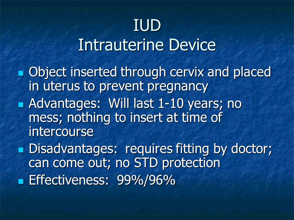 IUD Intrauterine Device Object inserted through cervix and placed in uterus to prevent pregnancy Object inserted through cervix and placed in uterus t
