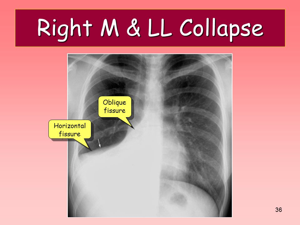 36 Right M & LL Collapse Oblique fissure Horizontal fissure