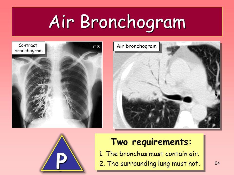 64 Air Bronchogram Two requirements: 1. The bronchus must contain air. 2. The surrounding lung must not. Two requirements: 1. The bronchus must contai