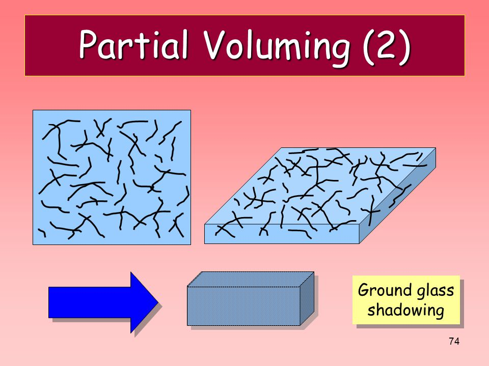 74 Partial Voluming (2) Ground glass shadowing Ground glass shadowing