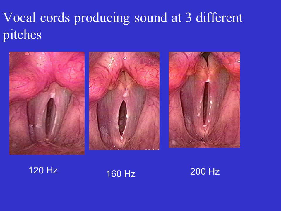 Vocal cords producing sound at 3 different pitches 120 Hz 160 Hz 200 Hz