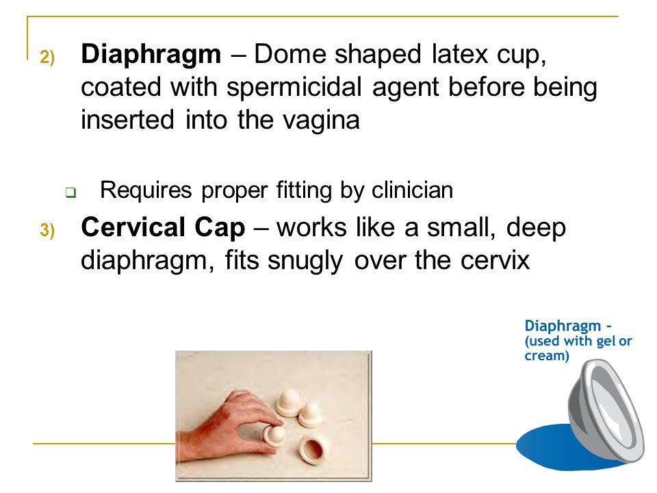 2) Diaphragm – Dome shaped latex cup, coated with spermicidal agent before being inserted into the vagina  Requires proper fitting by clinician 3) Cervical Cap – works like a small, deep diaphragm, fits snugly over the cervix