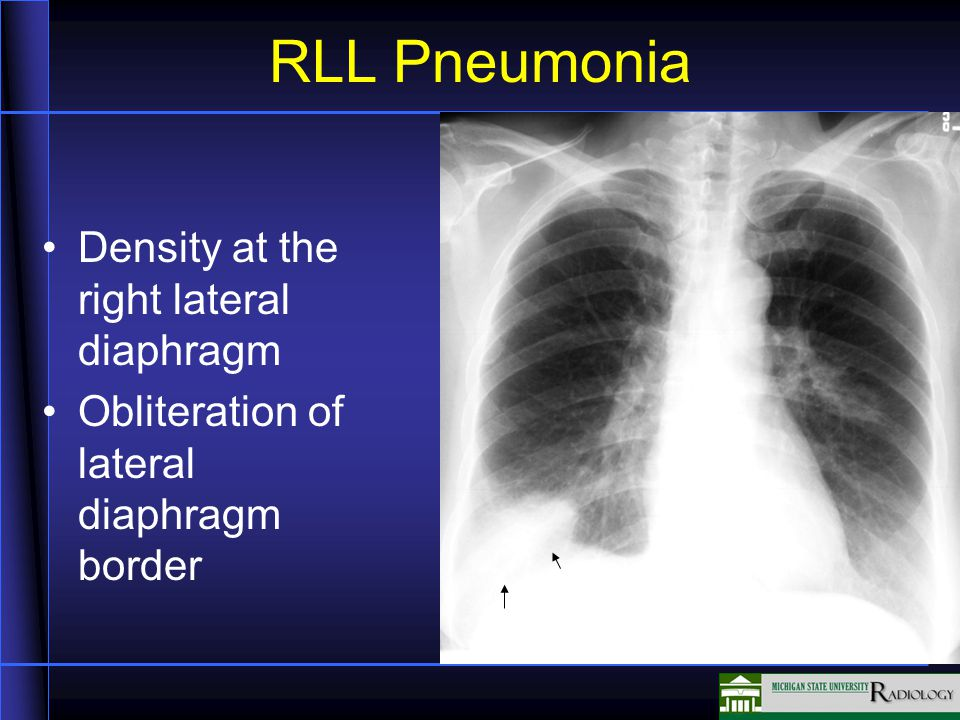 RLL Pneumonia Density at the right lateral diaphragm Obliteration of lateral diaphragm border
