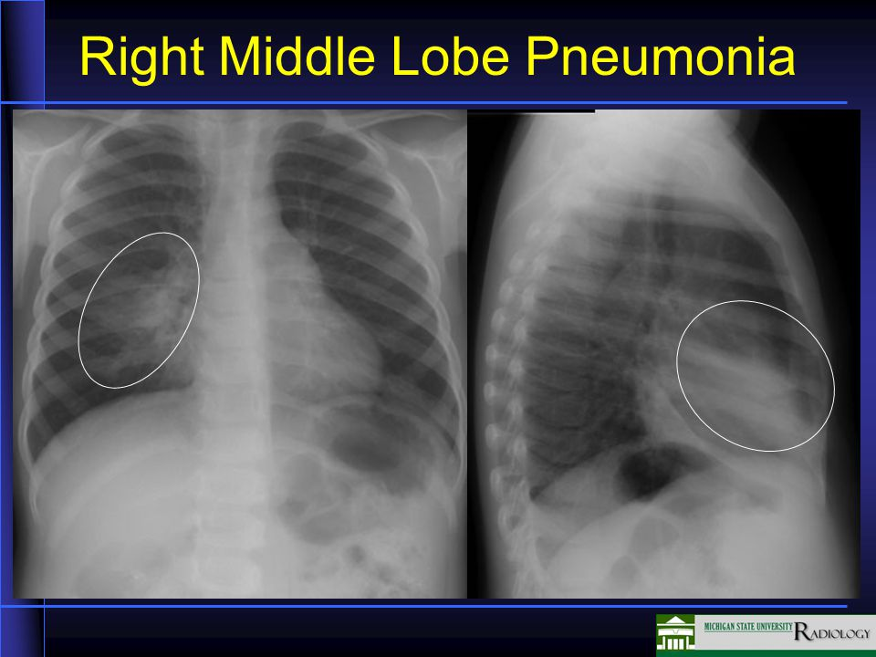 Right Middle Lobe Pneumonia