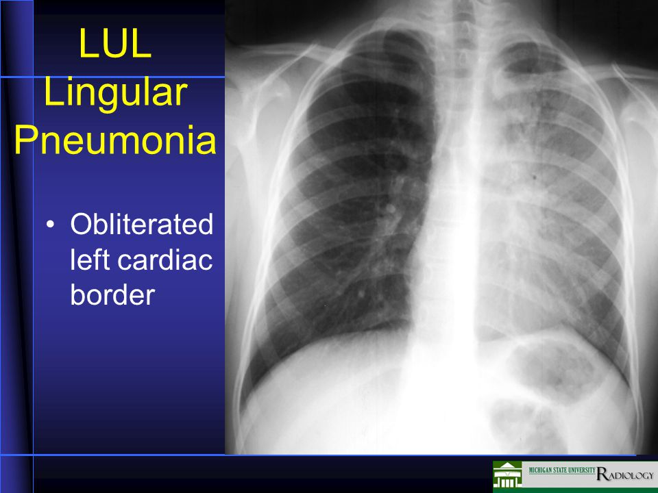 LUL Lingular Pneumonia Obliterated left cardiac border