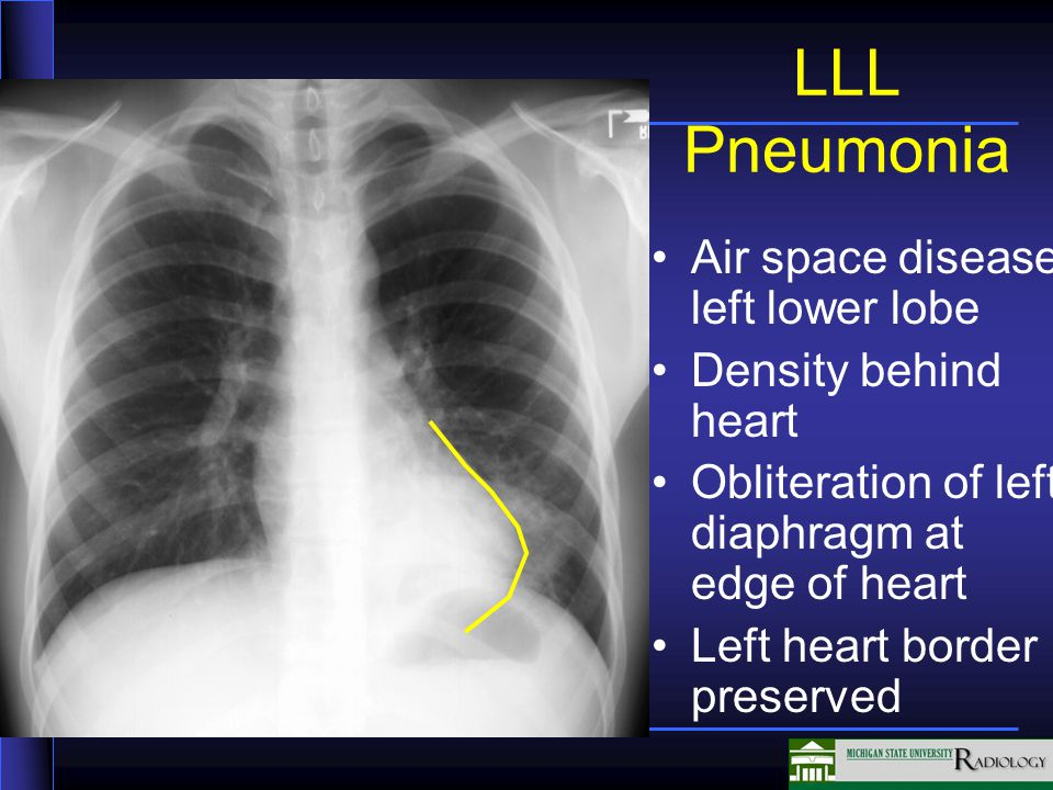 LLL Pneumonia Air space disease left lower lobe Density behind heart Obliteration of left diaphragm at edge of heart Left heart border preserved