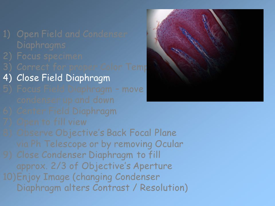 1)Open Field and Condenser Diaphragms 2)Focus specimen 3)Correct for proper Color Temperature 4)Close Field Diaphragm 5)Focus Field Diaphragm – move condenser up and down 6)Center Field Diaphragm 7)Open to fill view 8)Observe Objective's Back Focal Plane via Ph Telescope or by removing Ocular 9)Close Condenser Diaphragm to fill approx.