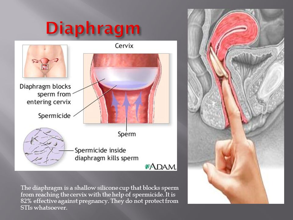 The diaphragm is a shallow silicone cup that blocks sperm from reaching the cervix with the help of spermicide.