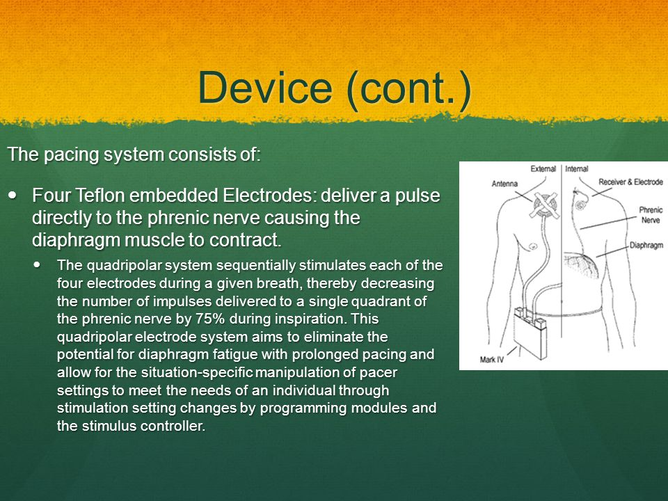 Device (cont.) The pacing system consists of: Four Teflon embedded Electrodes: deliver a pulse directly to the phrenic nerve causing the diaphragm mus