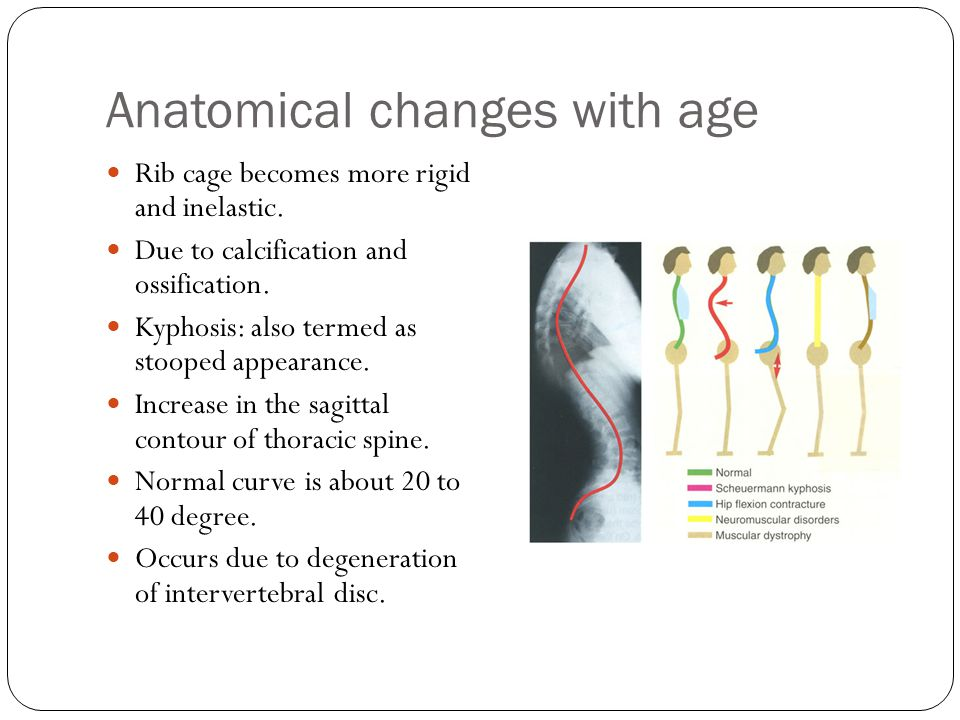 Anatomical changes with age Rib cage becomes more rigid and inelastic. Due to calcification and ossification. Kyphosis: also termed as stooped appeara
