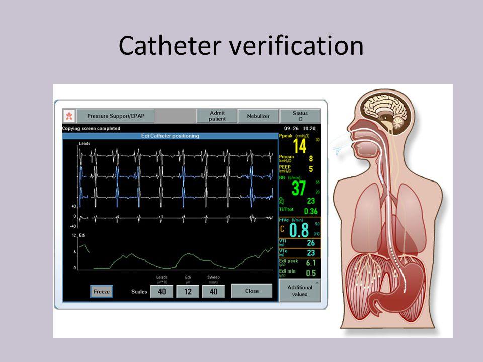Catheter verification