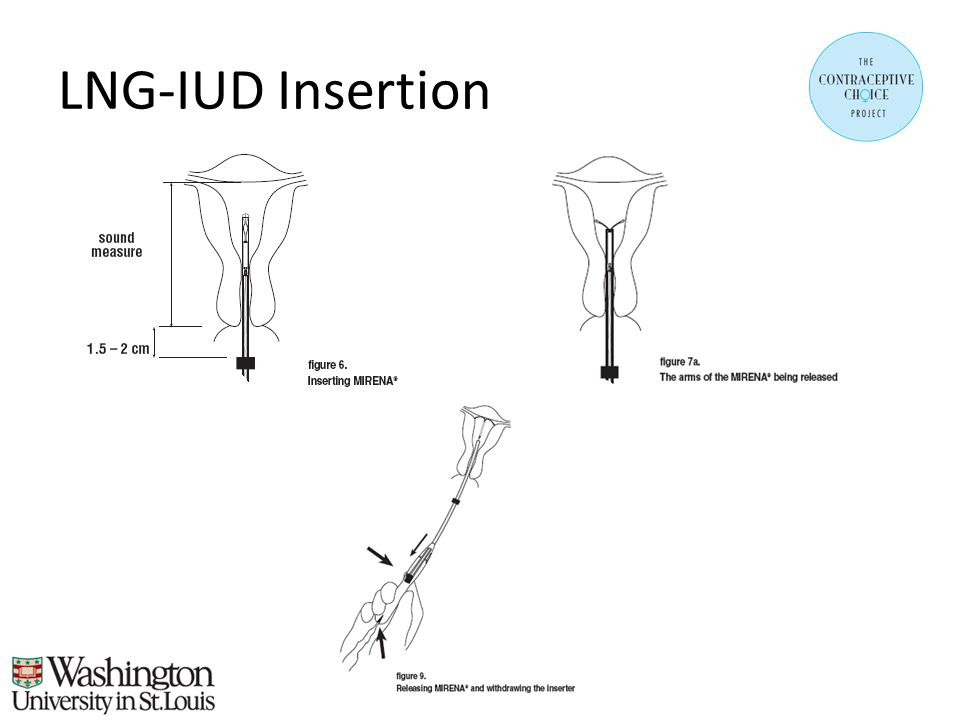 LNG-IUD Insertion