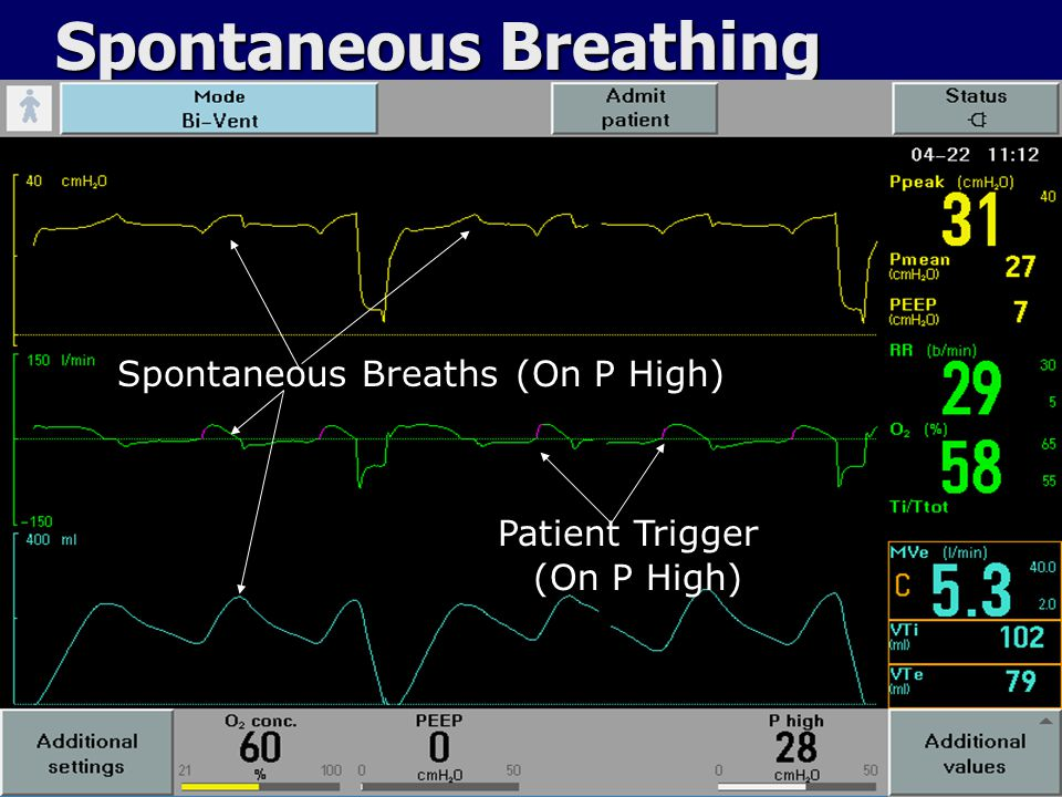 Bi-Vent Ventilation P High T High T PEEP