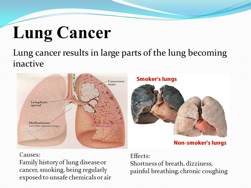 Lung Cancer Lung cancer results in large parts of the lung becoming inactive Causes: Family history of lung disease or cancer, smoking, being regularl