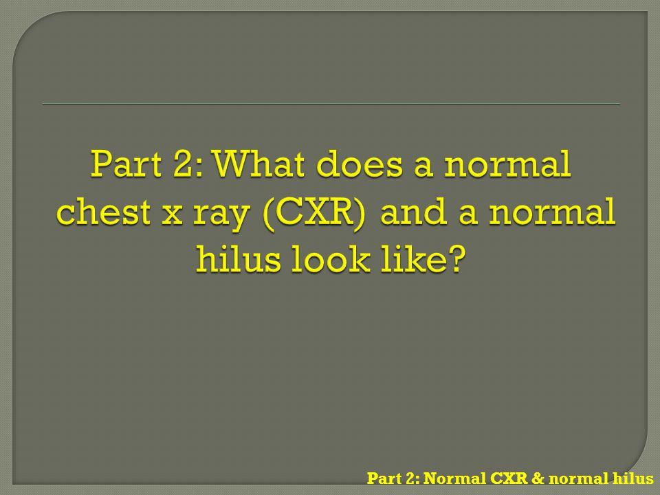 Part 2: Normal CXR & normal hilus