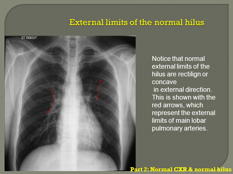 Notice that normal external limits of the hilus are rectilign or concave in external direction.