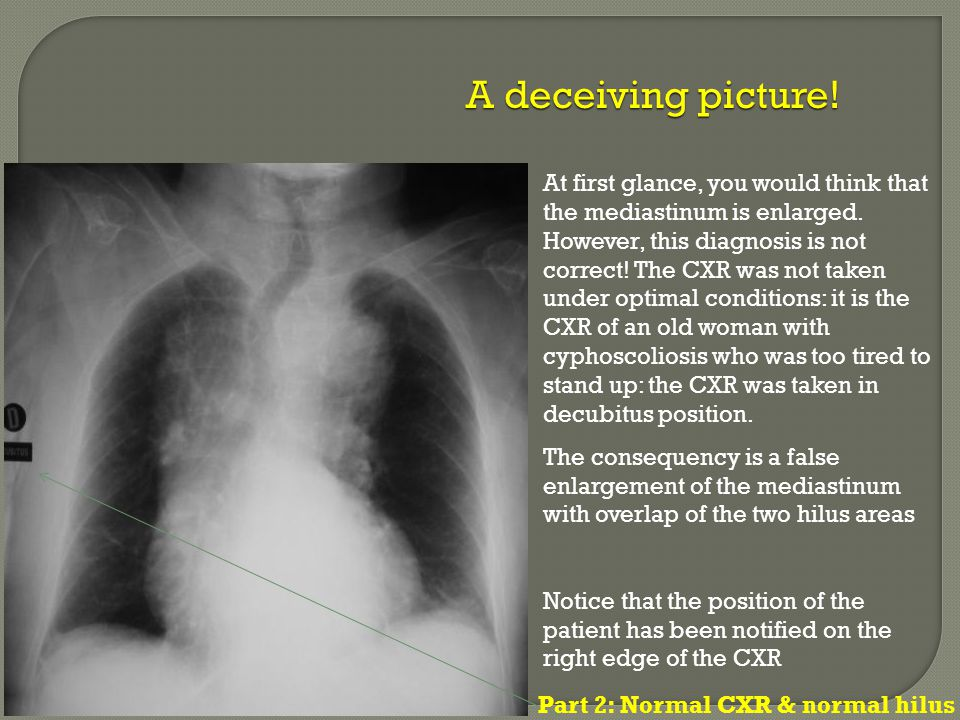At first glance, you would think that the mediastinum is enlarged. However, this diagnosis is not correct! The CXR was not taken under optimal conditi