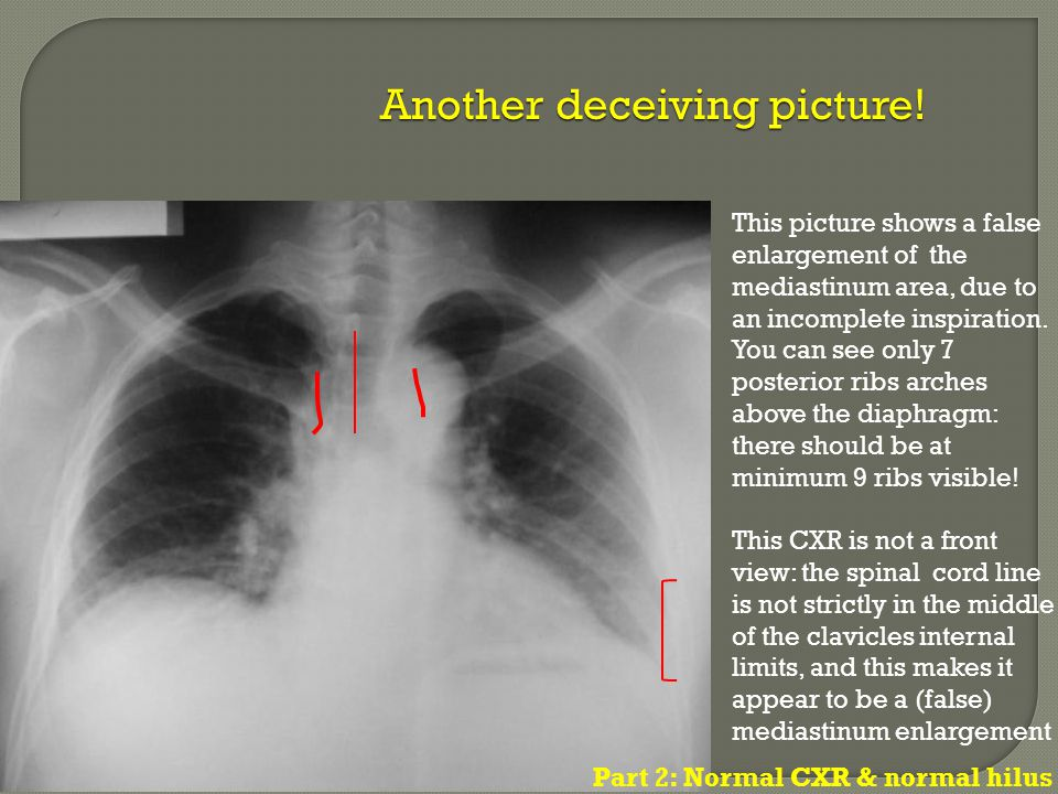 This picture shows a false enlargement of the mediastinum area, due to an incomplete inspiration. You can see only 7 posterior ribs arches above the d