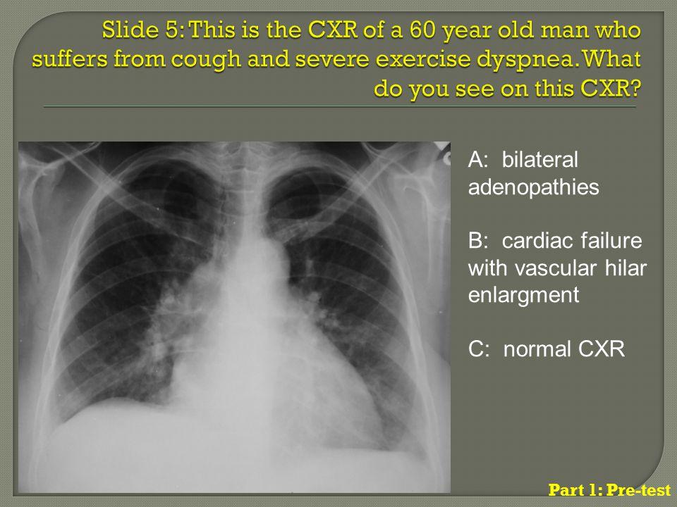 A: bilateral adenopathies B: cardiac failure with vascular hilar enlargment C: normal CXR Part 1: Pre-test