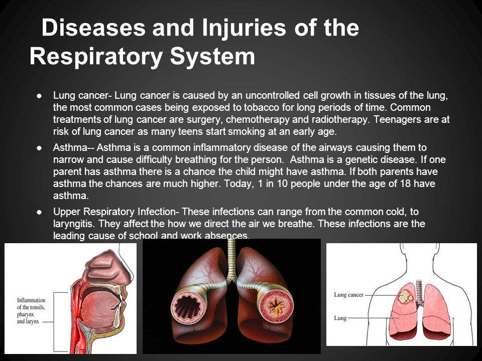 Diseases and Injuries of the Respiratory System ●Lung cancer- Lung cancer is caused by an uncontrolled cell growth in tissues of the lung, the most common cases being exposed to tobacco for long periods of time.