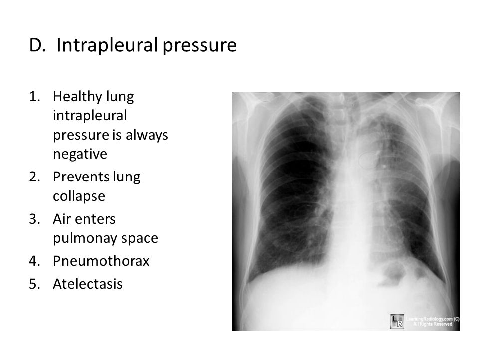 D. Intrapleural pressure 1.Healthy lung intrapleural pressure is always negative 2.Prevents lung collapse 3.Air enters pulmonay space 4.Pneumothorax 5
