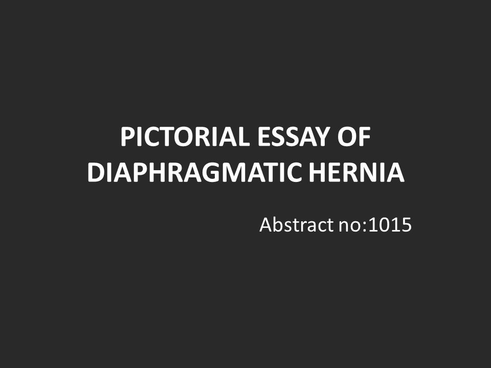 PICTORIAL ESSAY OF DIAPHRAGMATIC HERNIA Abstract no:1015