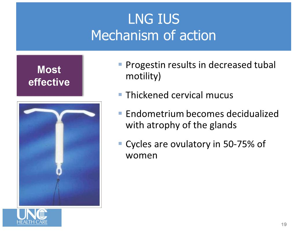 LNG IUS Mechanism of action  Progestin results in decreased tubal motility)  Thickened cervical mucus  Endometrium becomes decidualized with atrophy of the glands  Cycles are ovulatory in 50-75% of women 19