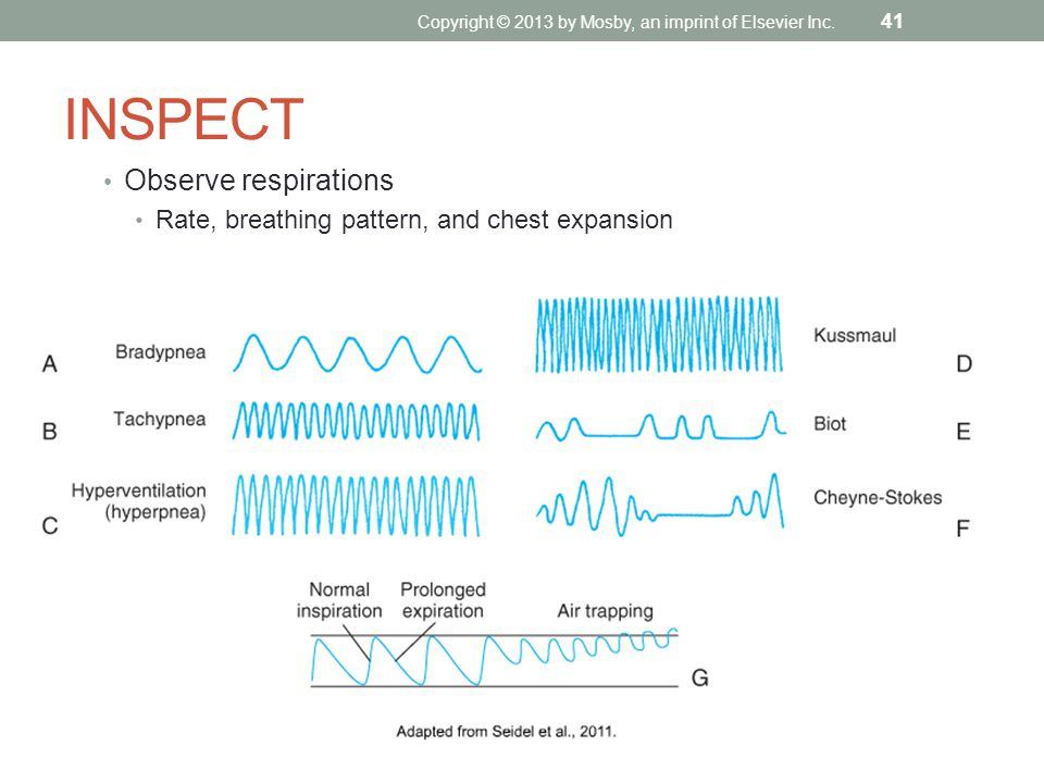 INSPECT Observe respirations Rate, breathing pattern, and chest expansion Copyright © 2013 by Mosby, an imprint of Elsevier Inc. 41
