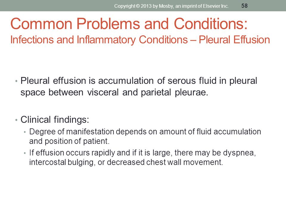 Common Problems and Conditions: Infections and Inflammatory Conditions – Pleural Effusion Pleural effusion is accumulation of serous fluid in pleural