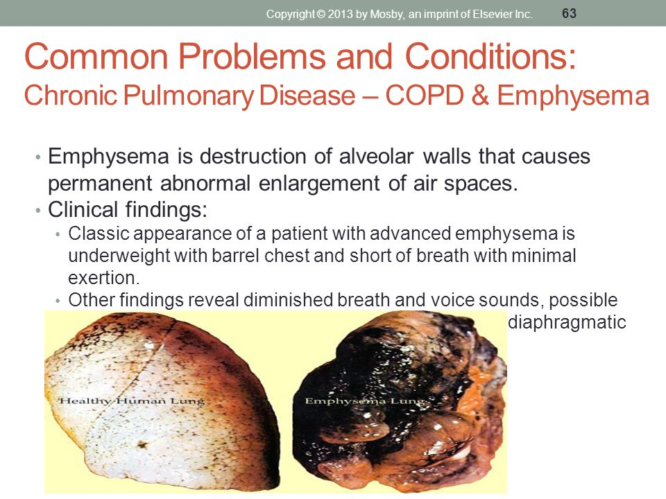 Common Problems and Conditions: Chronic Pulmonary Disease – COPD & Emphysema Emphysema is destruction of alveolar walls that causes permanent abnormal