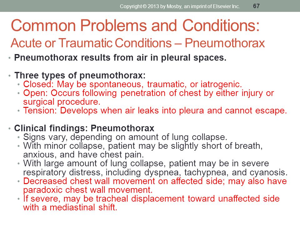 Common Problems and Conditions: Acute or Traumatic Conditions – Pneumothorax Pneumothorax results from air in pleural spaces. Three types of pneumotho