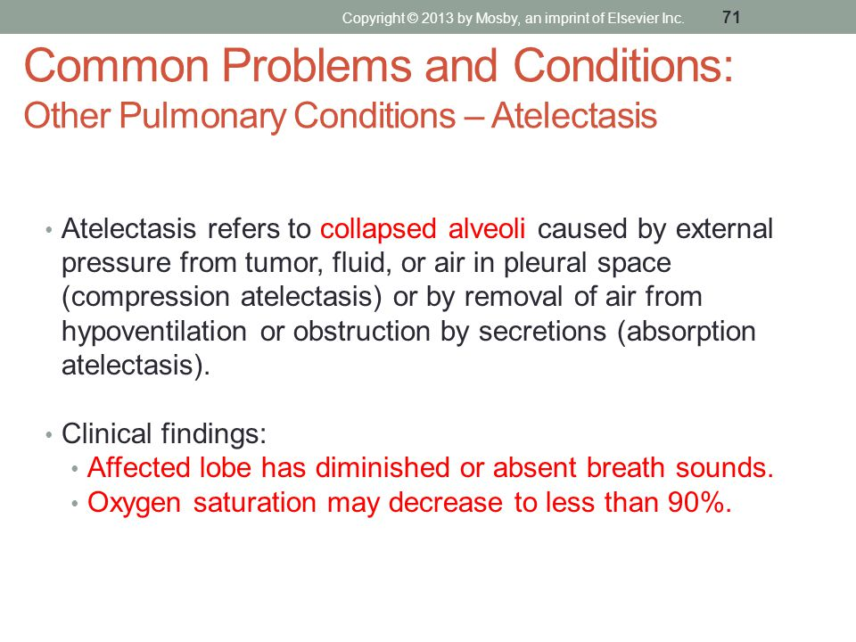 Common Problems and Conditions: Other Pulmonary Conditions – Atelectasis Atelectasis refers to collapsed alveoli caused by external pressure from tumo