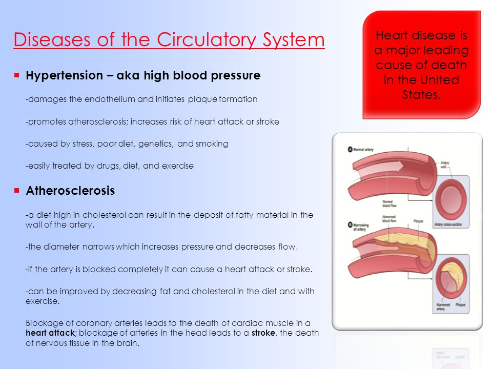  Hypertension – aka high blood pressure -damages the endothelium and initiates plaque formation -promotes atherosclerosis; increases risk of heart at