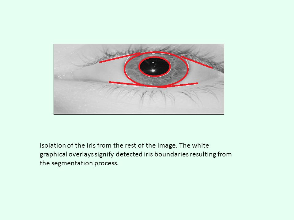 Isolation of the iris from the rest of the image.