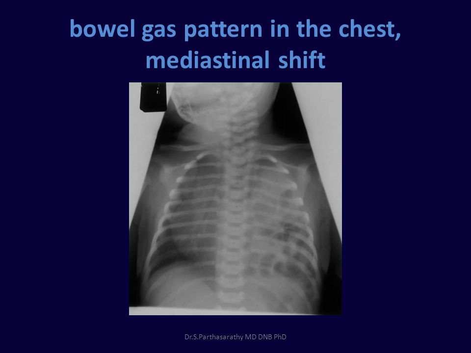 bowel gas pattern in the chest, mediastinal shift Dr.S.Parthasarathy MD DNB PhD