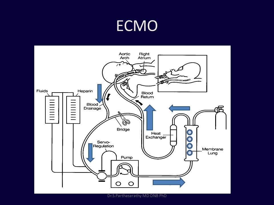 ECMO Dr.S.Parthasarathy MD DNB PhD