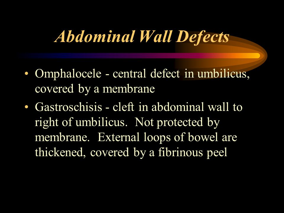 Choanal Atresia Problems 20 to 50% have assciated defects CHARGE syndrome –Colobomata of the eyes –Heart defects –Atresia of the choanae –Renal anomaly –Growth and mental retardation, gastresophageal reflux –Ear deficits