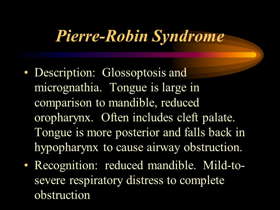 Pierre-Robin Syndrome Description: Glossoptosis and micrognathia.