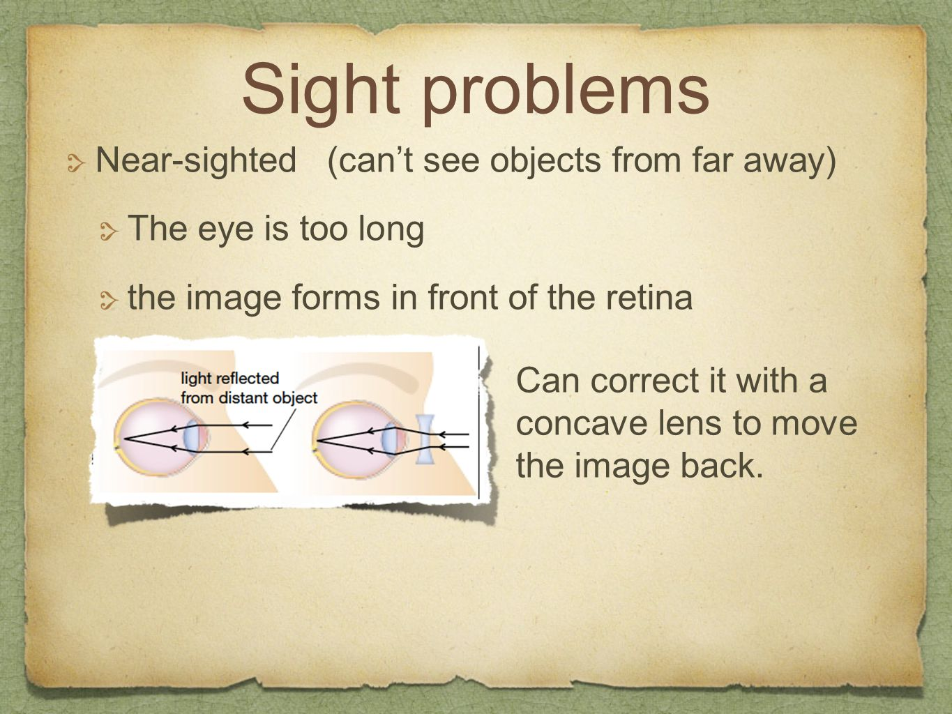 Sight problems Near-sighted (can't see objects from far away) The eye is too long the image forms in front of the retina Can correct it with a concave