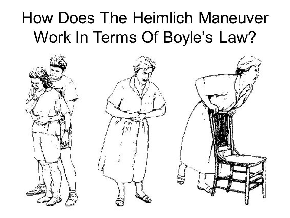 How Does The Heimlich Maneuver Work In Terms Of Boyle's Law?