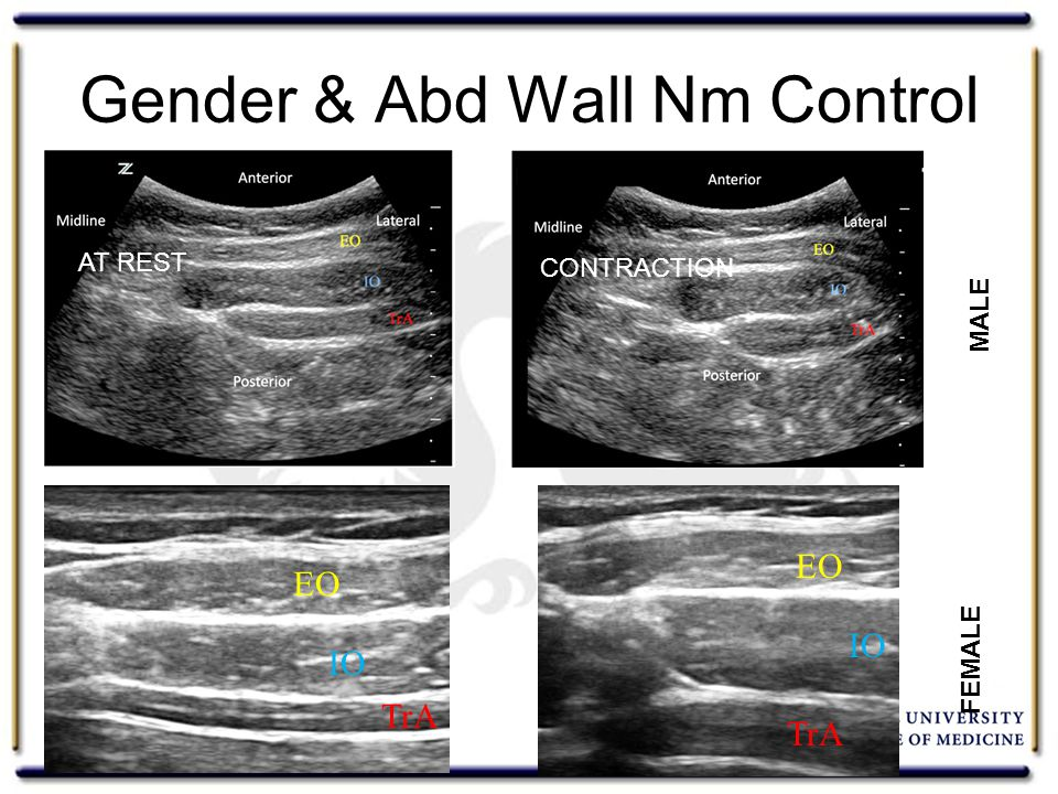 Gender & Abd Wall Nm Control Rho 2013 EO IO TrA MALE FEMALE AT REST CONTRACTION